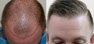 Hair Transplant Training Course